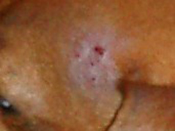 Pink hairless patches with red bumps